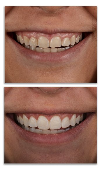 Plastic Gum Surgery