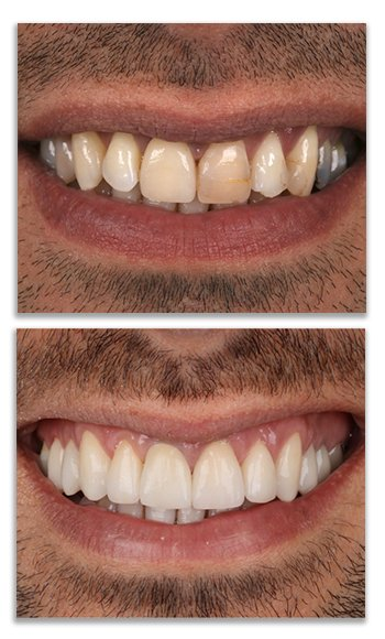 Tooth Covers
